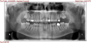 dental xrays 2009